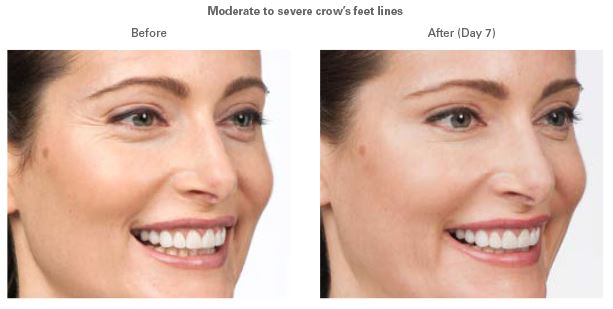 Botox before and after.