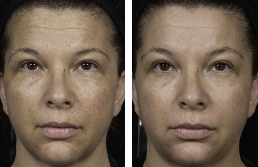 Sun damaged skin before and after.