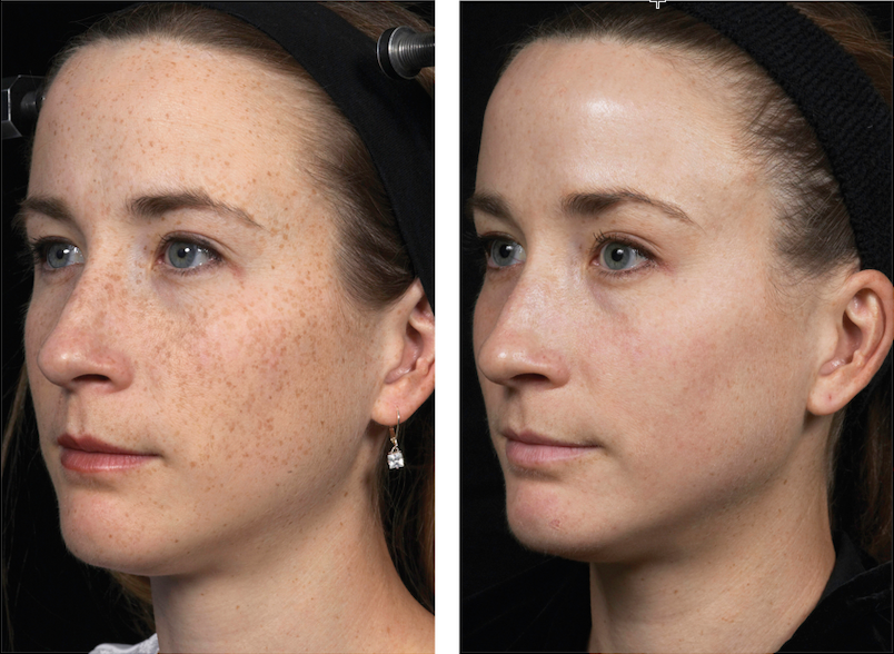 Fraxel before and after for freckles.