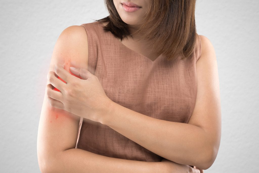 Woman scratching arm.