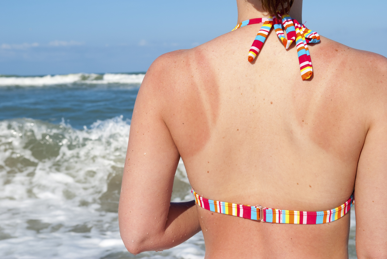 Red sunburn on woman\'s back and shoulders.