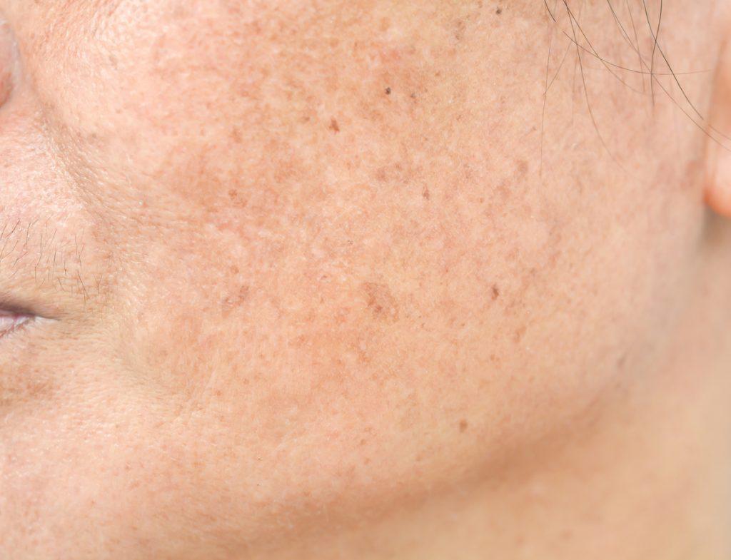 Sun damaged skin.