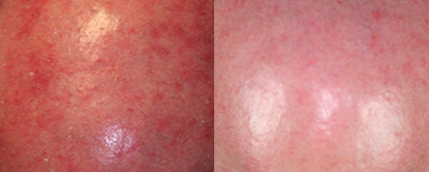 Actinic keratosis treatment before and after.