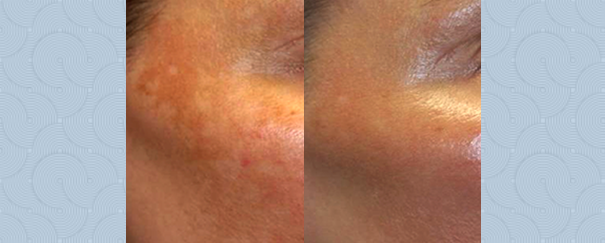 Melasma treatment before and after.