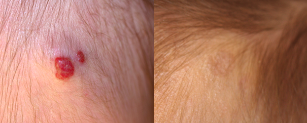 hemangioma treatment before and after