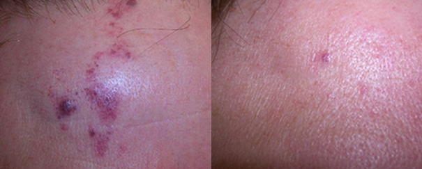 port wine stain treatment before and after