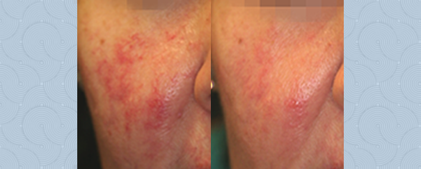 facial rosacea treatment before and after