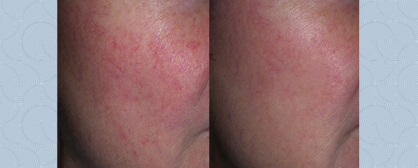 facial spider vein treatment before and after