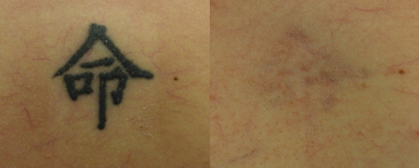 Tattoo removal before and after.