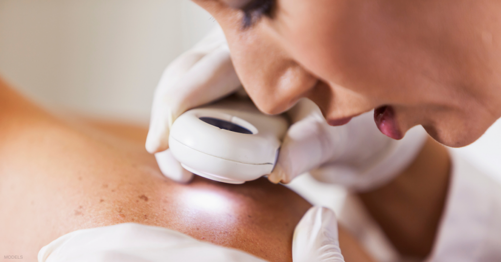 Female dermatologist checking for skin cancer